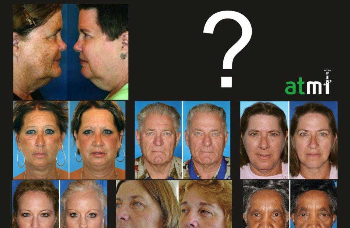 7 ζευγάρια διδύμων, περιμένουν να μαντέψτε τον καπνιστή!